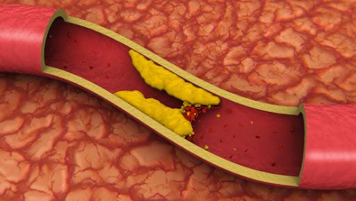 Desequilíbrio no Colesterol