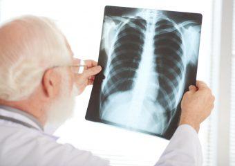 Infectologista do Hutrin alerta para preconceito contra pacientes com tuberculose